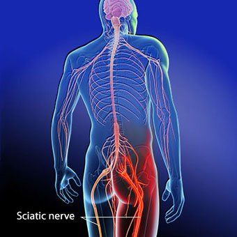 How Massage Therapy Can Ease Sciatic Pain